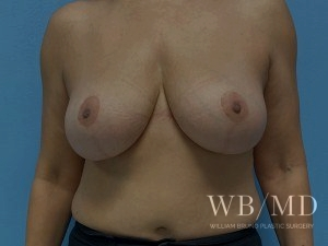 Patient 5a After Breast Lift - Front View