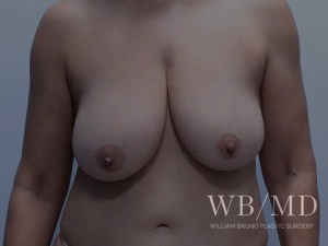 Patient 5a Before Breast Lift - Front View