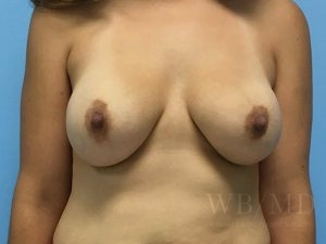 Patient 2a After Breast Revision
