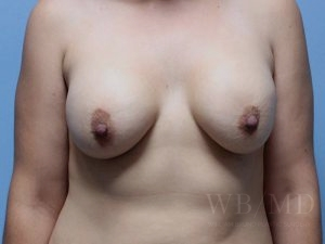 Patient 2a Before Breast Revision