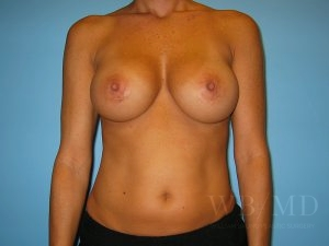 Patient 1a After Breast Augmentation