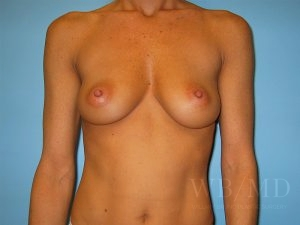 Patient 1a Before Breast Augmentation