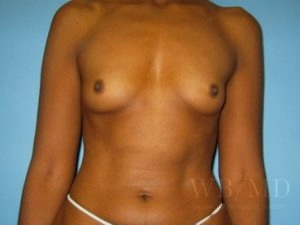 Patient 7a Before Breast Augmentation