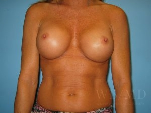 Patient 10a After Breast Augmentation