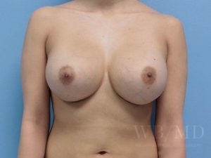 Patient 9a After Breast Augmentation