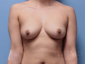 Patient 9a Before Breast Augmentation
