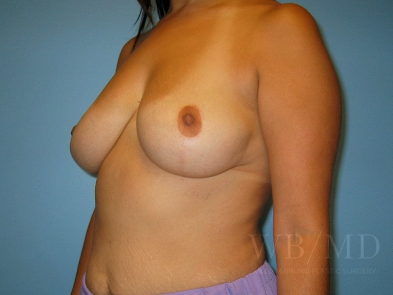 1a - after breast lift photo