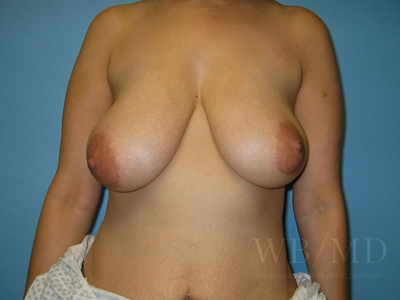 1b - before breast lift photo