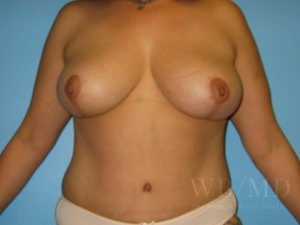 Patient 2a After Breast Lift