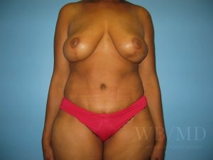 3a - after breast lift photo