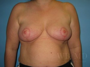 Patient 1a After Breast Reduction