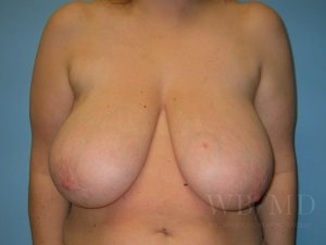 Patient 1a Before Breast Reduction