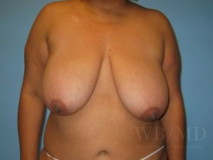 Patient 2a Before Breast Reduction