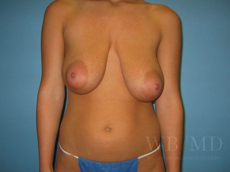 3b - before breast reduction image