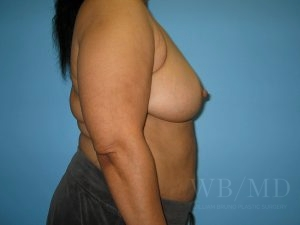 Patient 4a After Breast Reduction