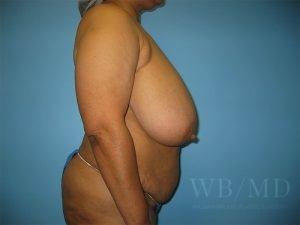 Patient 4a Before Breast Reduction