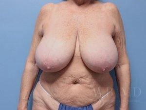 Patient 6a Before Breast Reduction