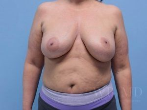 Patient 3a After Breast Revision