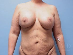 1 - Before Breast Revision photo