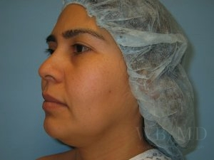 Patient 1a Before Chin Liposuction