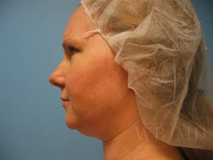 Patient 2a Before Chin Liposuction