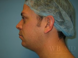 Patient 3a Before Chin Liposuction