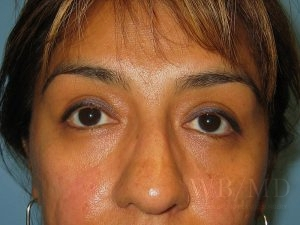 Patient 1a After Eyelid Surgery