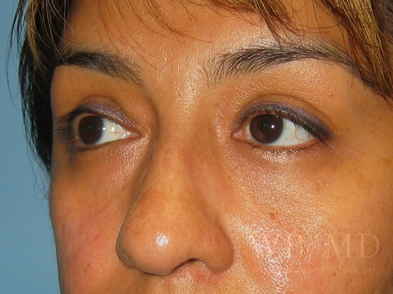 Patient 1b After Eyelid Surgery