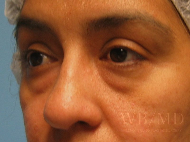 Patient 1b Before Eyelid Surgery