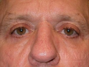 Patient 6a After Eyelid Surgery