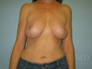 Patient 4a After Breast Lift