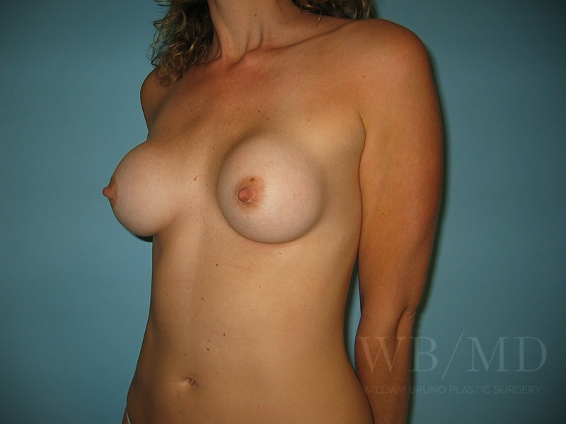 before breast revision image