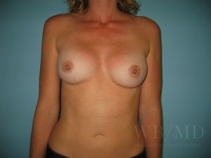 after breast revision image