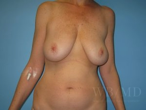 12 - before breast lift photo