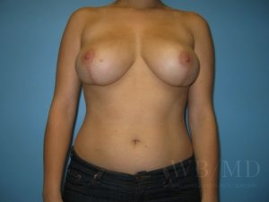 Patient 5a After Breast Reduction