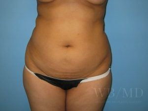 1 - before liposuction photo