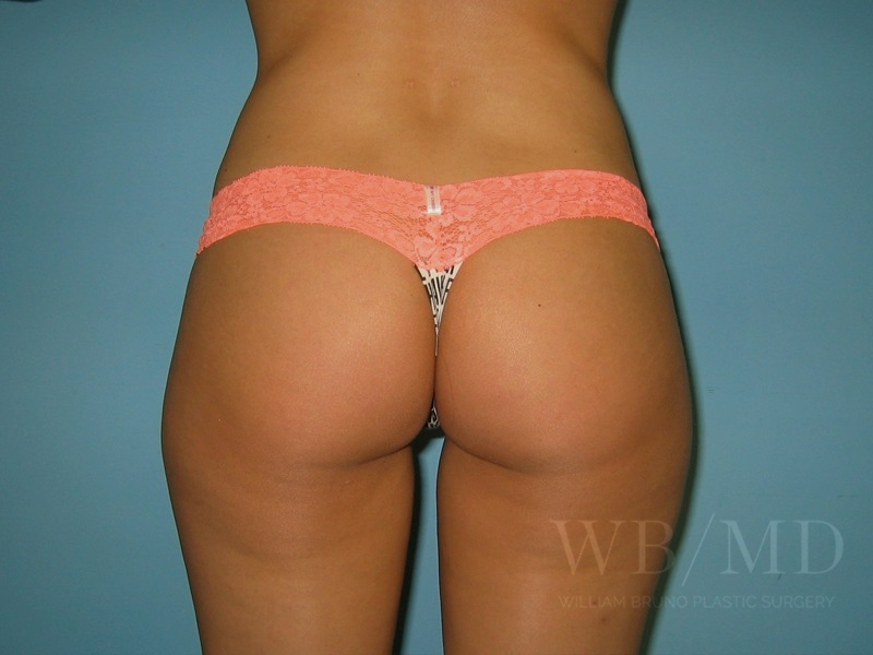 2 - after liposuction photo