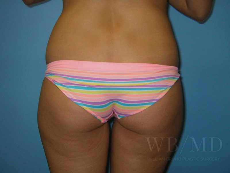 2 - before liposuction photo