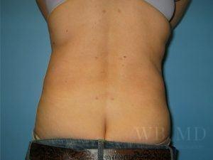 4 - after liposuction photo