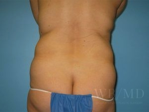 4 - before liposuction photo