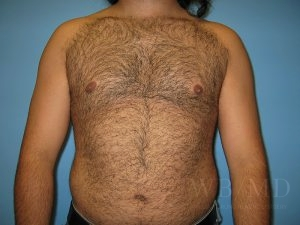 Patient 1a After Male Breast Reduction