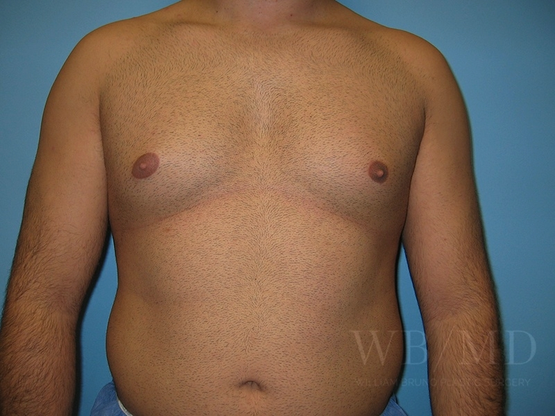Patient 1a Before Male Breast Reduction