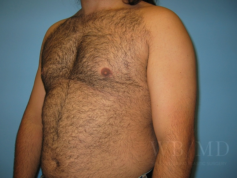 Patient 1b After Male Breast Reduction