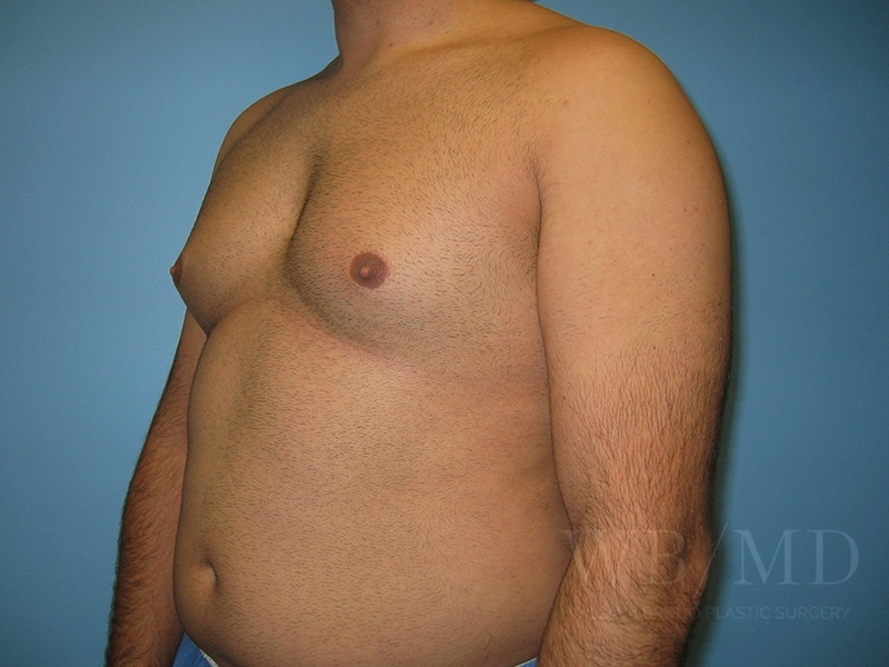 Patient 1b Before Male Breast Reduction