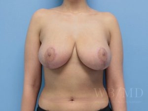 Patient 6a After Breast Reduction