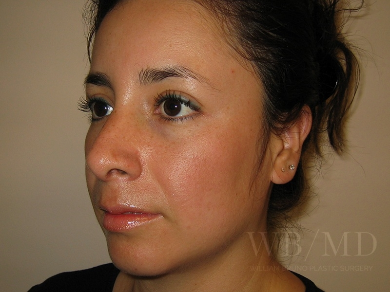 Patient 1b After Rhinoplasty