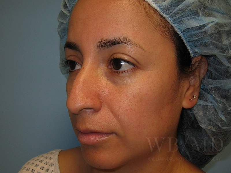 Patient 1b Before Rhinoplasty