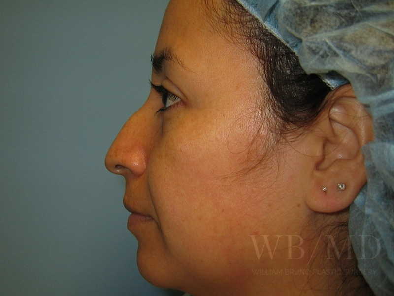 Patient 1a Before Rhinoplasty