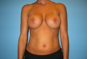 silicone breast augmentation patient- Dr.William Bruno