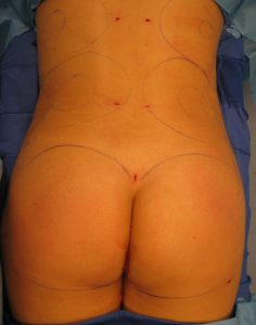 Brazilian buttock lift patient-Dr.Bruno